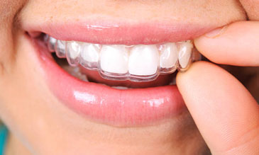 Invisalign® clear aligners